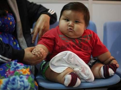 bayi-obesitas